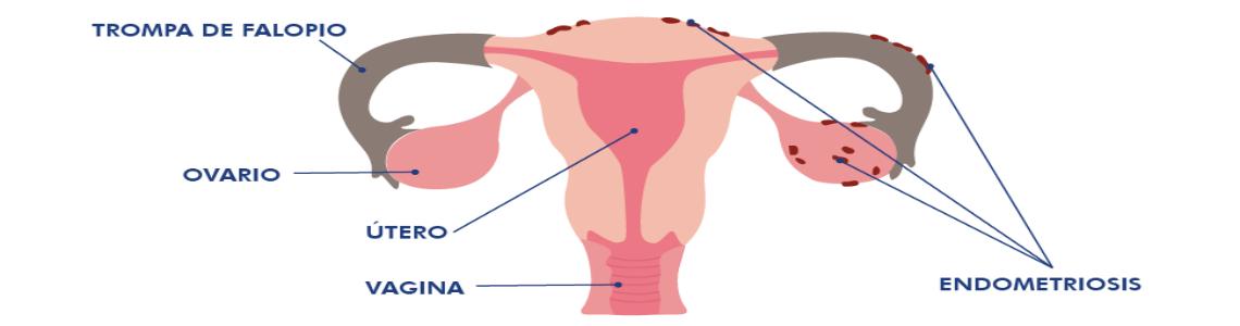 Desmontando mitos sobre la Endometriosis